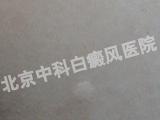 北京18新利手机客户端医院